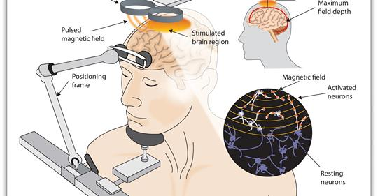 JAMA : Brain Stimulation Approved for Obsessive-Compulsive Disorder